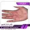اگزمای دست