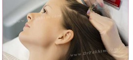 مزوتراپی و درمان ریزش مو